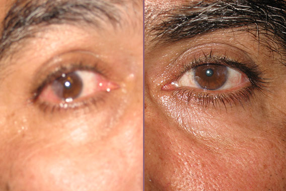 Before & After Pterygium Removal Photo Gallery