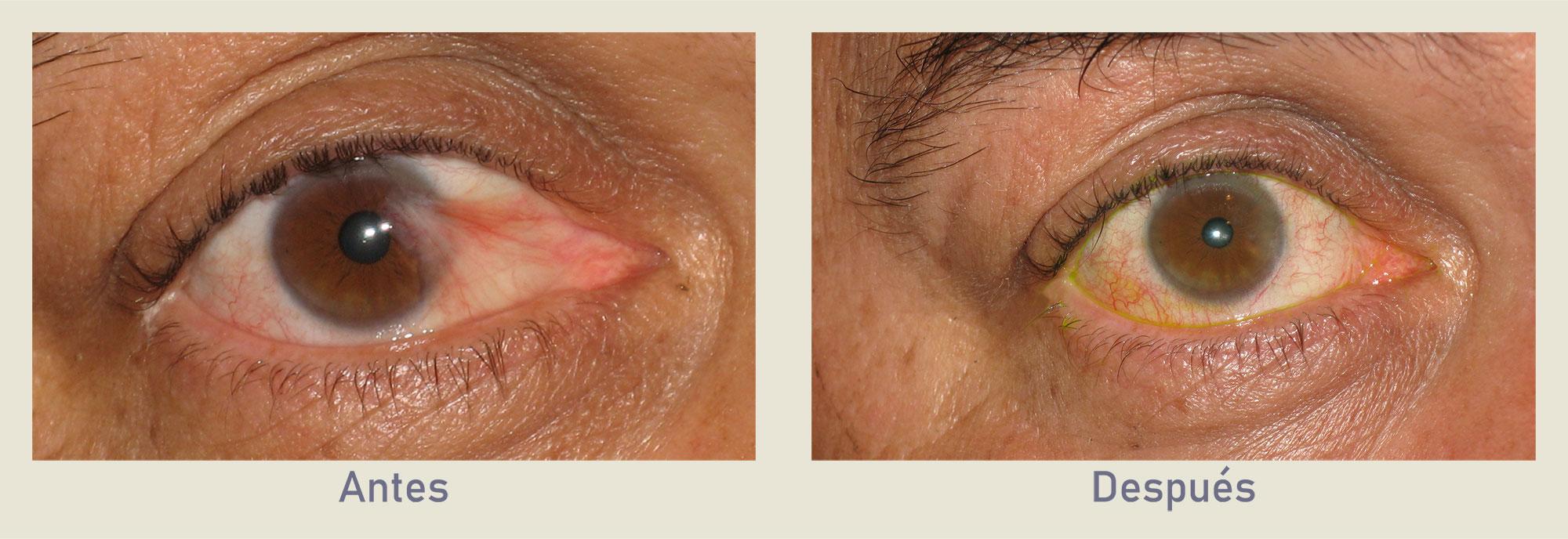 Fotos de pterigio ojo antes y después