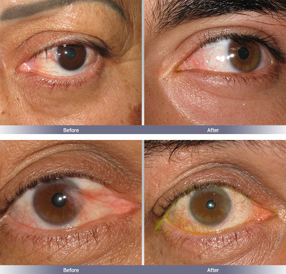 Dr. Franz Michel - Pterygium Removal Doctor - Los Angeles