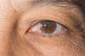 Pterygium Surgery Los Angeles