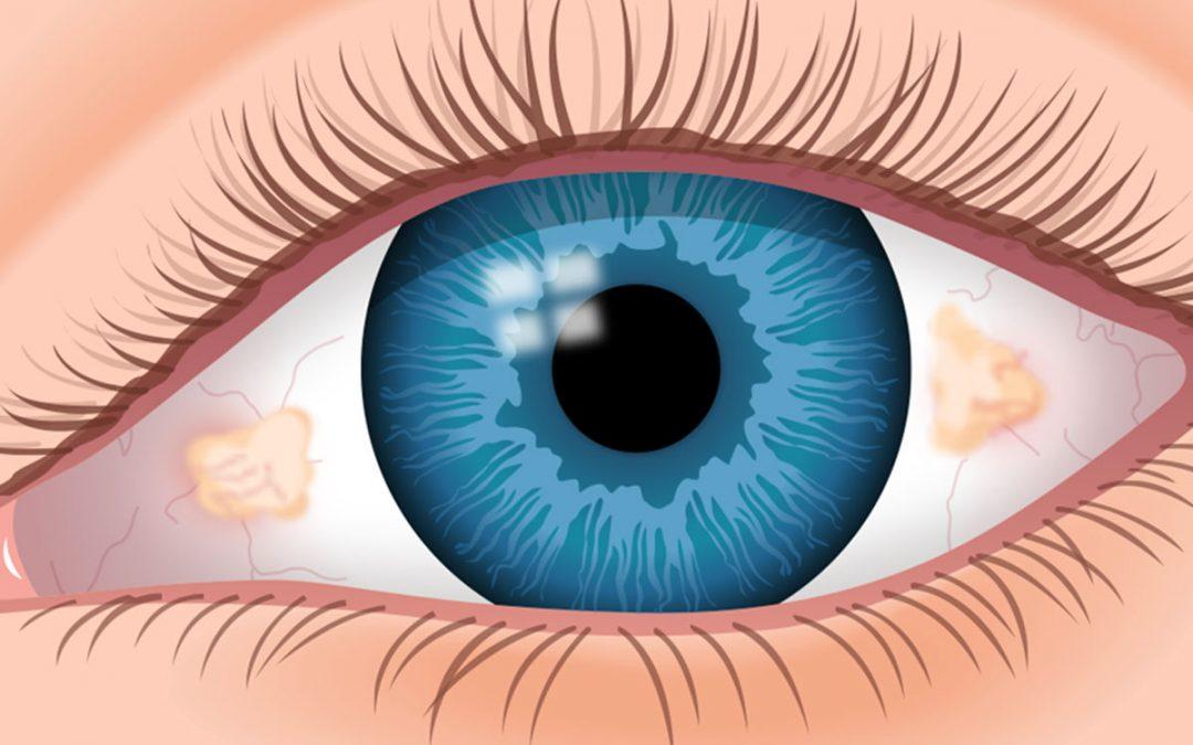 Si usted se preocupa con bultos y protuberancias en el ojo