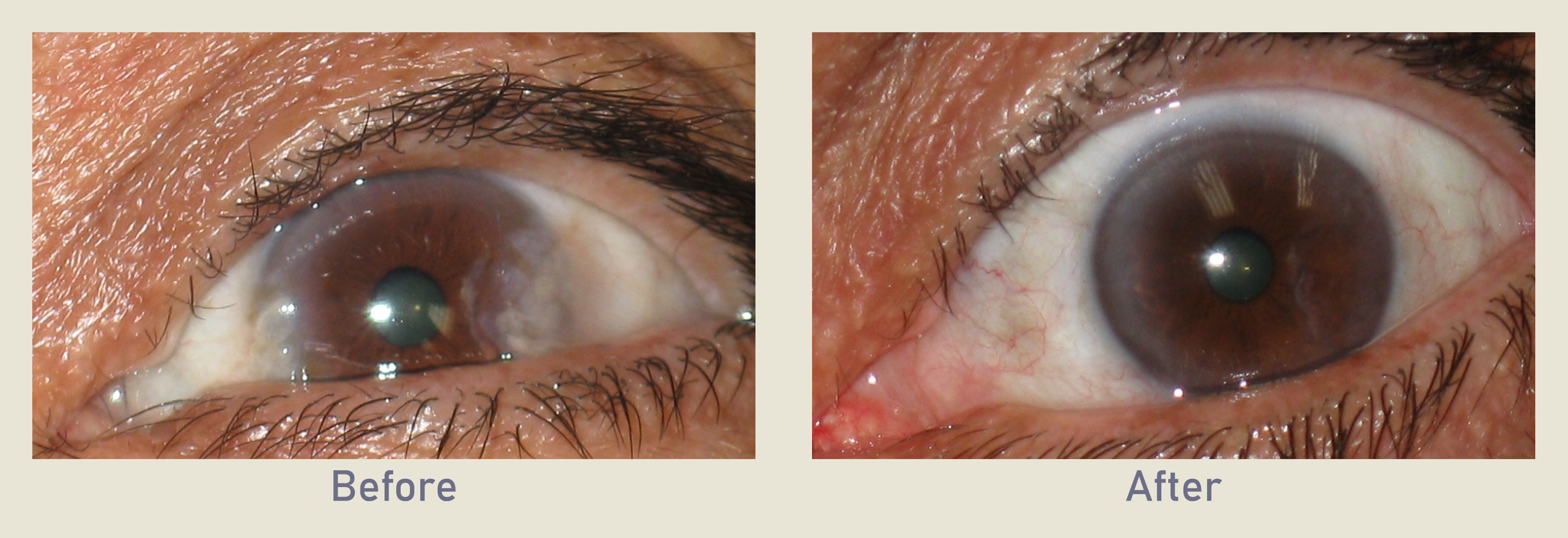 Pterygium Carnosidad Surfers Eye Before and After